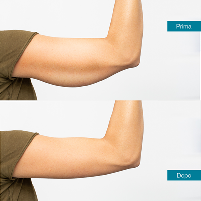 dott-antimo-leva-medicina-estetica-aversa-lifting-braccia