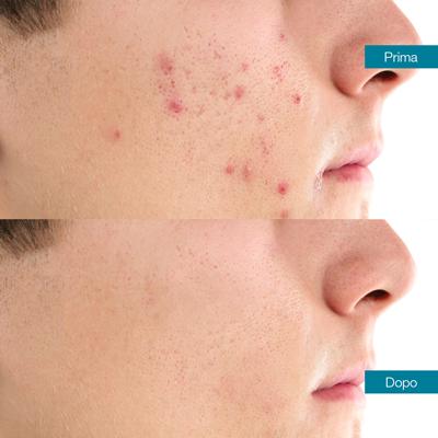 dott-antimo-leva-medicina-estetica-aversa-cicatrici-da-acne