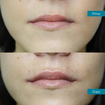 dott-antimo-leva-medicina-estetica-aversa-filler-labbra
