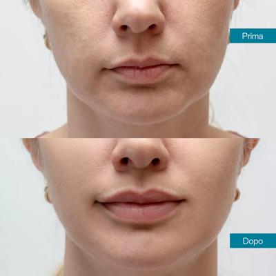 dott-antimo-leva-medicina-estetica-aversa-lifting-viso