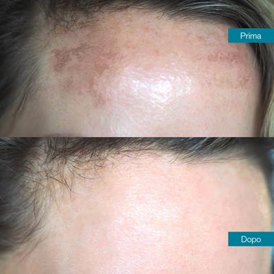 dott-antimo-leva-medicina-estetica-aversa-trattamento-macchie-cutanee