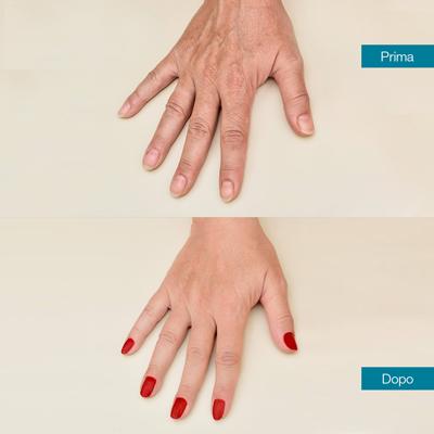 dott-antimo-leva-medicina-estetica-aversa-lifting-mani