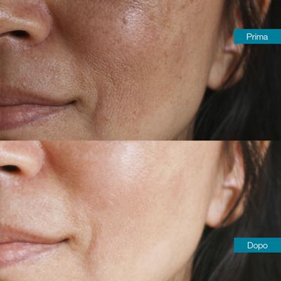 dott-antimo-leva-medicina-estetica-aversa-trattamento-della-pelle